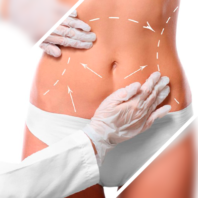 Liposuction possible side effects